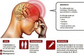 http://vnoticia.com.br/noticia/2313-saude-de-sfi-se-pronuncia-apos-caso-suspeito-de-meningite-em-guaxindiba