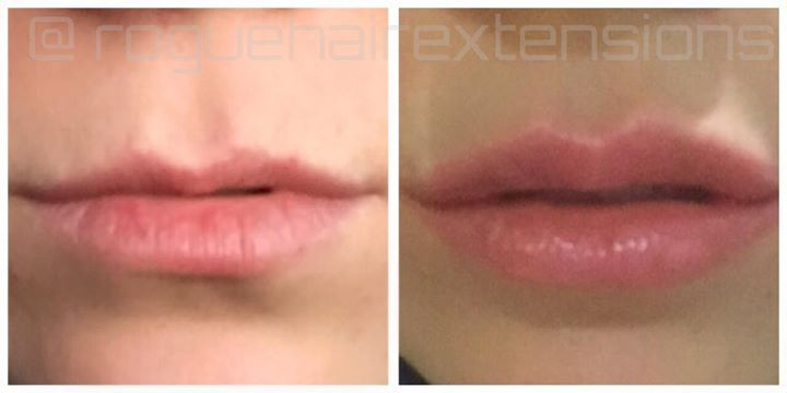 ROGUE Hair Extensions: Lip Injection 1ml Experience | All About Face