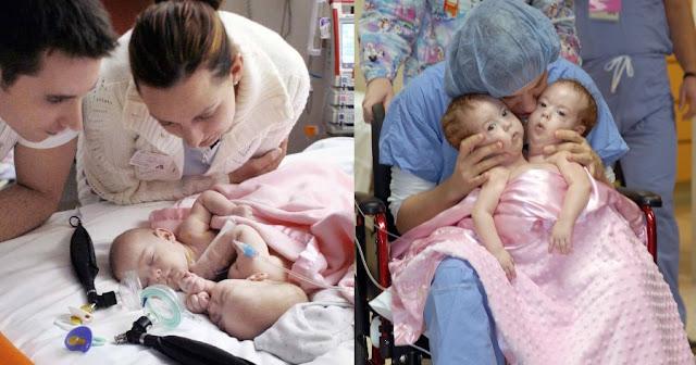 Γεννήθηκαν με κολλημένες τις καρδιές τους