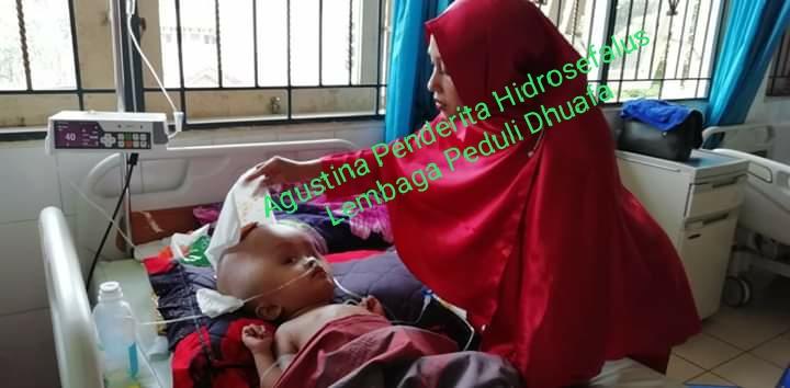 Jelang Operasi Ke-2 Orang Tua Agustina Penderita Hidrosefalus memohon Doa  kelancaran operasi dan kesembuhan agustina