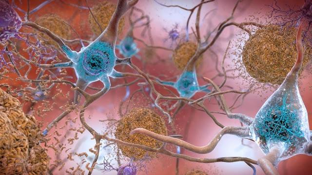 Nếu không muốn bộ não của bạn bị tổn thương hãy bỏ ngay 10 thói quen này
