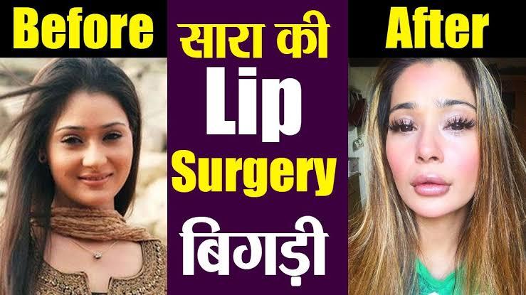 Sapna-Babul-ka-and-Bidaai-tv-show-actress-Sara-khan-Lip-surgery-pics