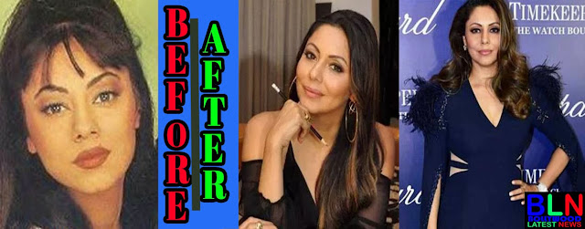 GAURI KHAN Bollywood Actresses Before and After Plastic Surgery