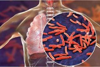 Metode Diagnosis dan Pengobatan Penderita Tuberkulosis
