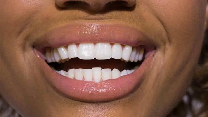 How to Clean Teeth and Whiten with Turmeric