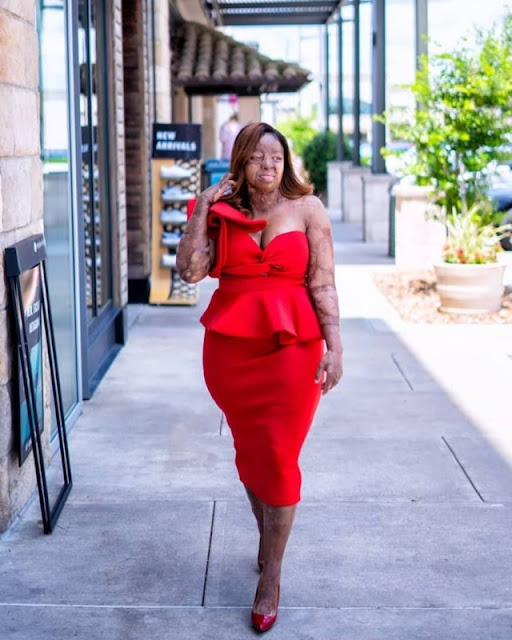 Sosoliso plane crash survivor and America's Got Talent Finalist, Kechi Okwuchi, shares stunning new photos