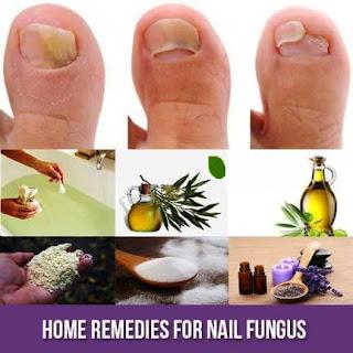Nail Fungus and Home Remedies