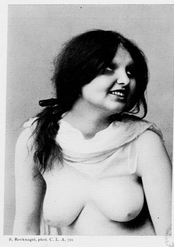 isterie Charcot Salpetriere fantezie sexuala