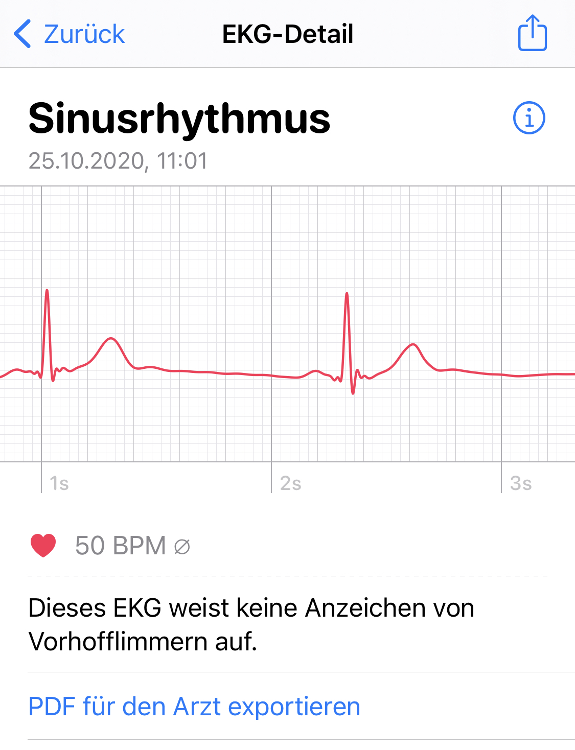 Apple Watch Series 6 Laufen Running EKG ECG