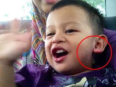 Testimoni Nutriferon : Eczema Az Zahin dah Pulih