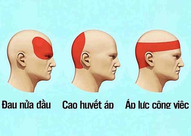 Cần xác định được nguyên nhân gây ra đau đầu để điều trị cho đúng