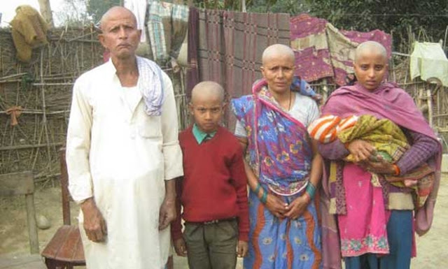 हैंडपंप के पानी से नहाने के बाद पूरा परिवार ही हो गया गंजा