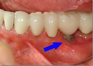 Có nên trồng răng implant phục hình răng mất không?