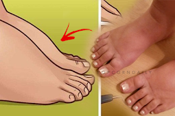 The 8 reasons why your health maybe in danger if you have swollen feet