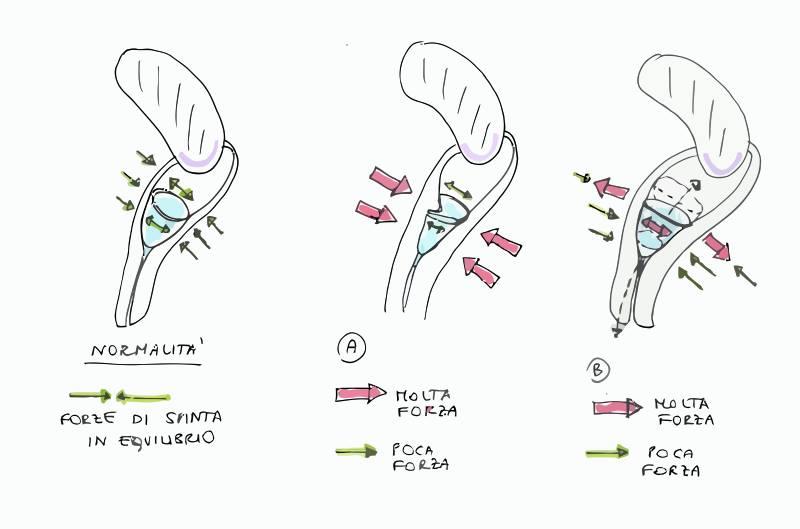 dolore pelvico dopo uso tampax vs