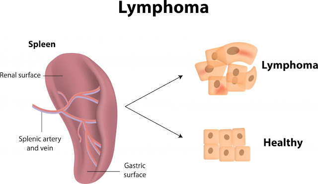 What Is The Difference Between Lung Cancer and Lymphoma?