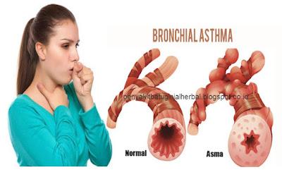 Penyebab Dan Gejala Penyakit Asma Bronkial