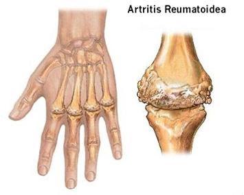 Suplemento contra Artritis reumatoide