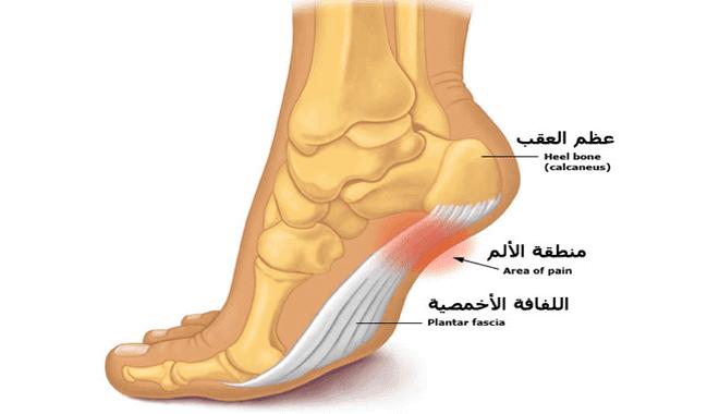 يمكن أن يكون الألم في القدم علامة على 6 أمراض خطرة! وهنا ما نبحث عنه