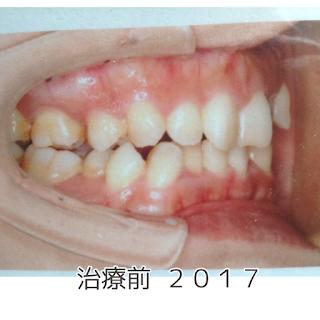 ©さんがつの歯科矯正を始めます 治療前の写真