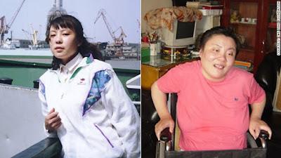 Lima Kasus Pembunuhan Menggunakan Racun Paling Keji di Dunia