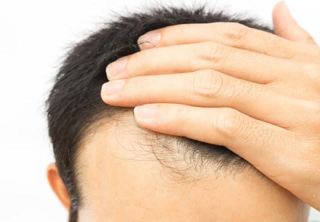 تكثيف الشعر من الامام