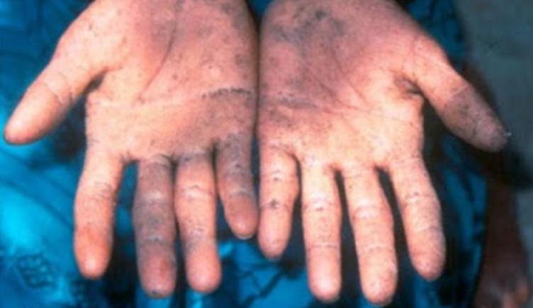 Sejarah Keracunan Makanan Paling Parah