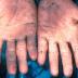 Sejarah Keracunan Makanan Paling Parah, Peristiwa Keracunan Massal