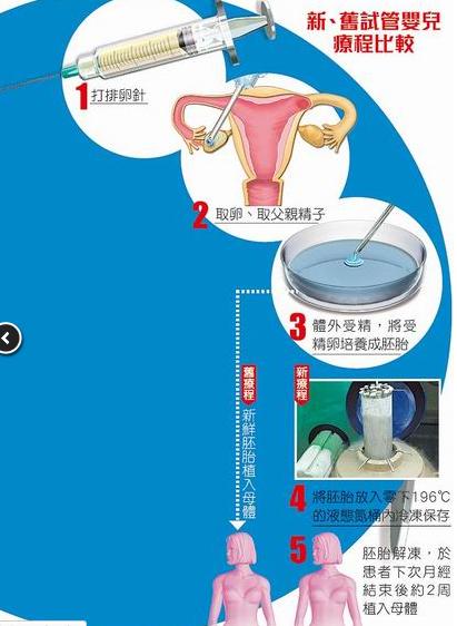 胚胎先「冷凍」再「解凍」