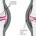 Osteoarthritis (OA)    Causes and management