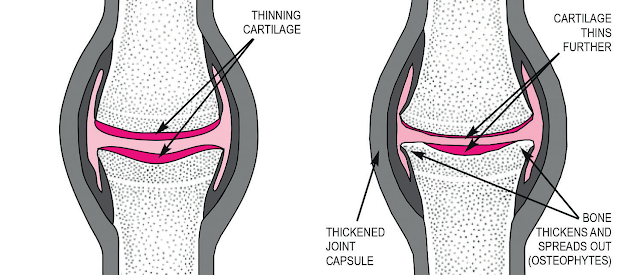 In osteoarthritis, cartilage becomes pitted, rough and brittle