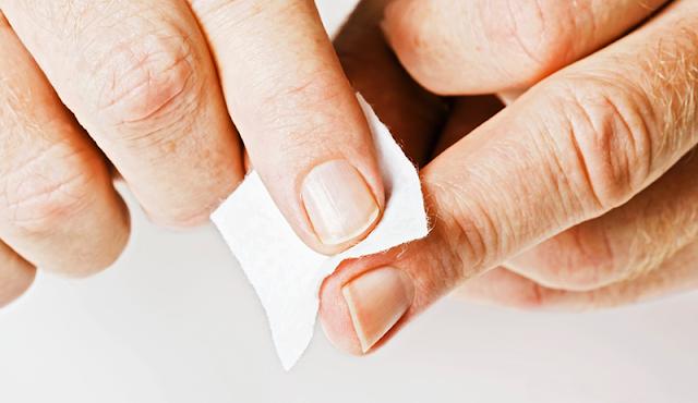 ثلاث وصفات طبيعية للعناية بالجروح