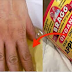 Soak Your Hands And Feet With ACV And Cure Arthritis