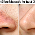 Ways To Remove Tons Of Blackheads and Whiteheads Using Lemon and Salt