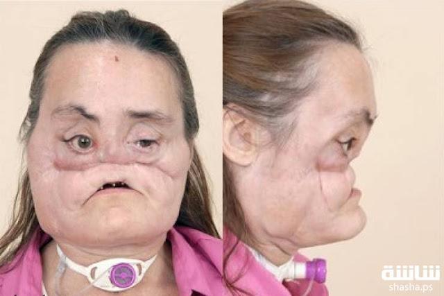 زرع وجه بالكامل لإمرأة مشوهة.. شاهد كيف أصبحت بعد العملية! إليكم كيف كان شكلها قبل التشوه!