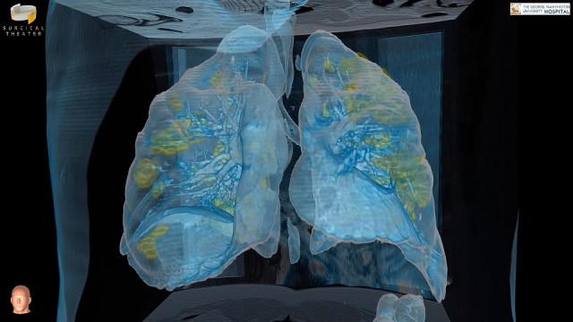 Teknologi VR Tampilkan Gambar Paru-paru Pasien Virus Corona COVID-19