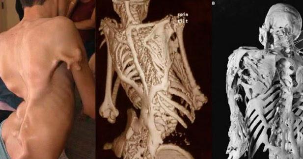 Sindrome Do Homem De Pedra Fibrodisplasia Ossificante