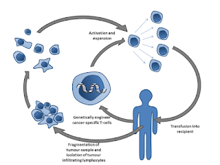 An explanation of the CAR T-cell therapy process: tumor removal, tumor infiltrating cell analysis, genome sequencing, cell reproduction, transfusion back into the patient.