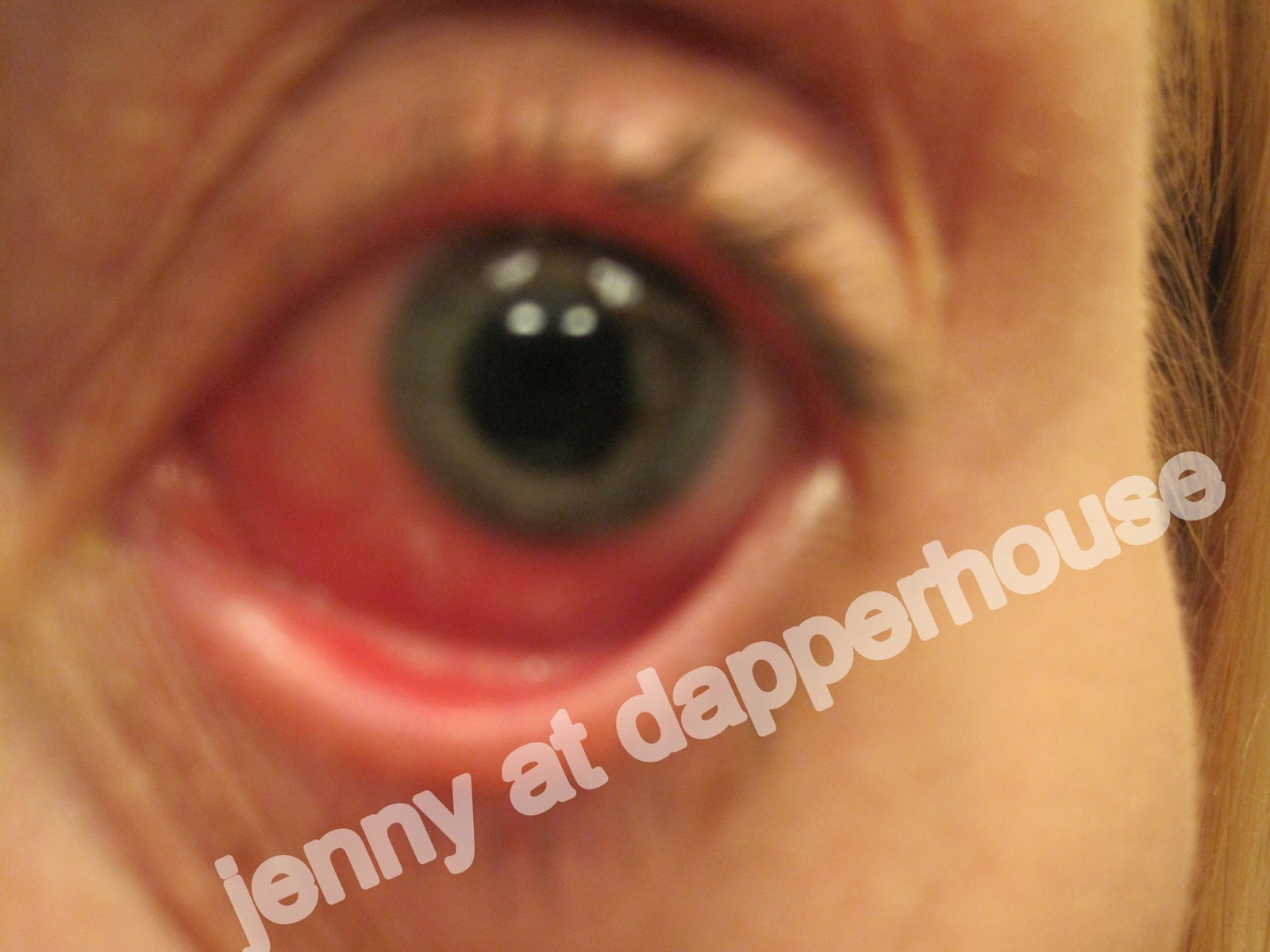 OH MY! What To Do When You Have Pink Eye - photo#24