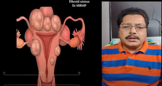 Fibroid Uterus Pictures