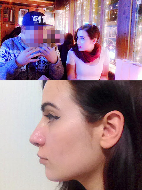 짱이뻐! -  A Captivating Woman With Wonjin's Korean Rhinoplasty