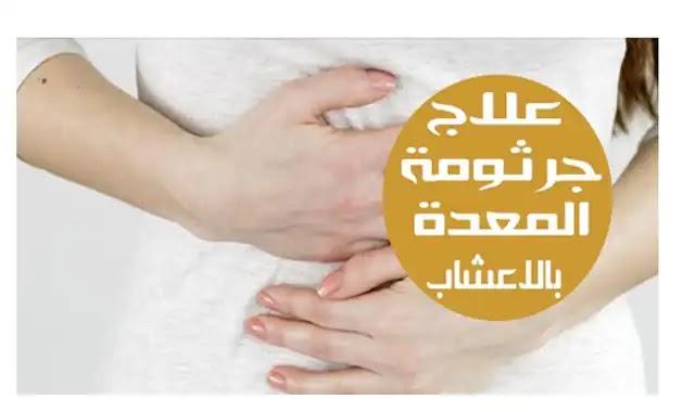 علاج جرثومة المعدة بالاعشاب مجرب