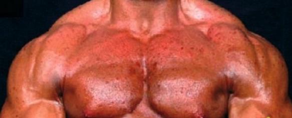 от стероидов простатит