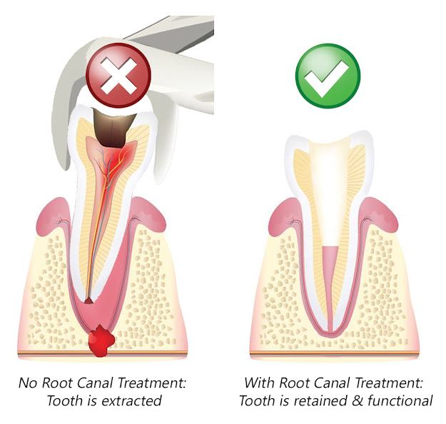 root canal treatment is better option than extraction