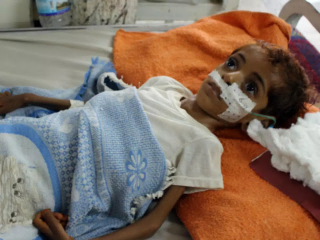 Yemen doctors despair as babies starve in 'orphaned province'