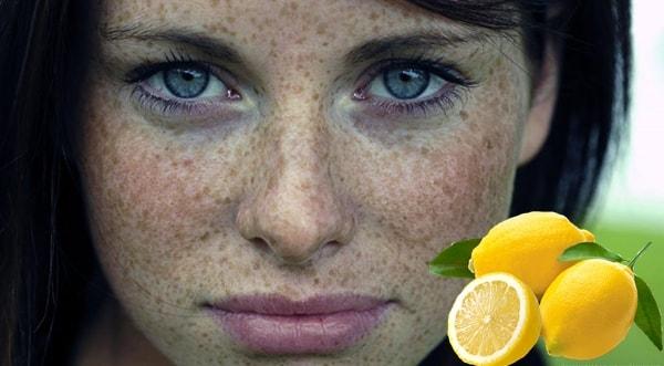 Limon Suyu İle Çillerden Kurtulmak Evde - www.kahvekafe.net