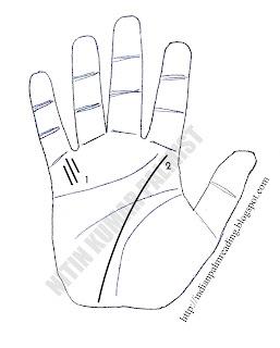 medical stigmata palmistry