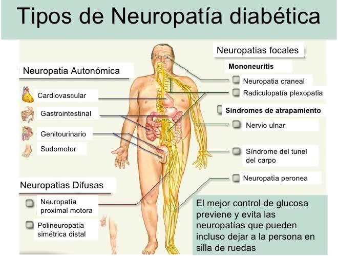 Del diabético por daño mononeuropatía nervio