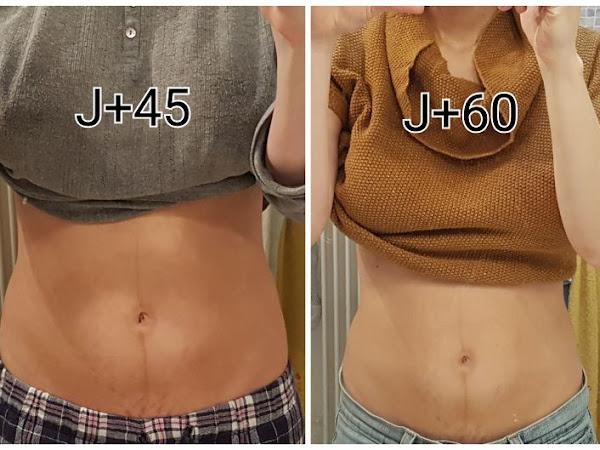 Mon corps après la grossesse # 2