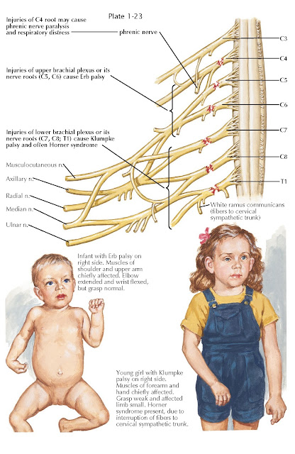 BRACHIAL PLEXUS AND/OR CERVICAL NERVE ROOT INJURIES AT BIRTH
